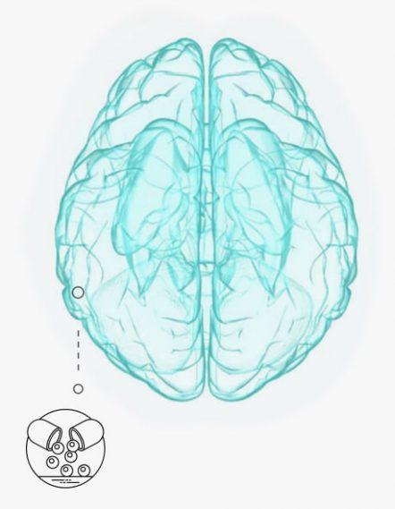sintomas_cerebro-min